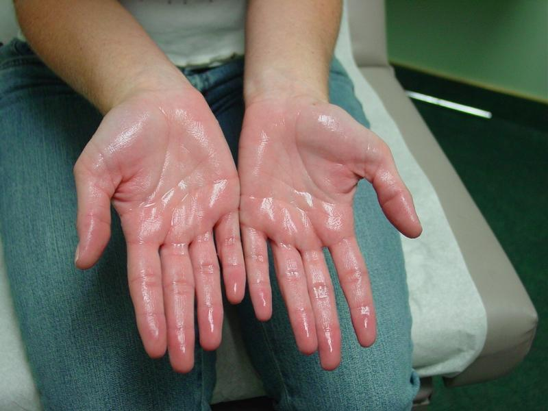 Hyperhidrosis , or excessive sweating diagnosis. The treatment of excessive sweating for adult like sweating hands and feet's includes local , surgical treatment etc.