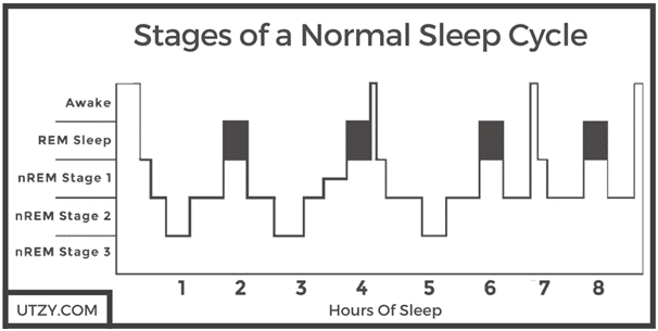 Stages of normal sleep cycle